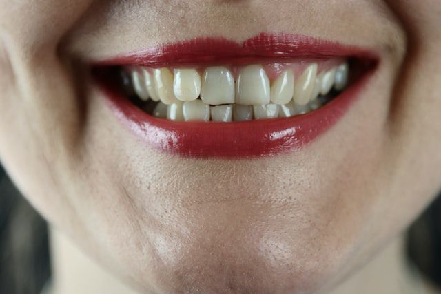 Smiling mouth that will show you how to remove plaque and tartar from teeth.